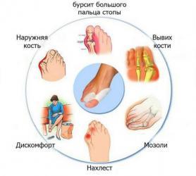 Фиксатор valgus pro против деформации большого пальца ноги в Душанбе